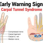 Carpal Tunnel Syndrome (CTS)