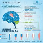 Massage for Cerebral Palsy (CP)