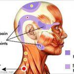 Myofascial Trigger Point Therapy/ Massage, Santa Barbara, Goleta, Ca.