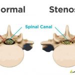 Massage for Stenosis in Santa Barbara, Goleta