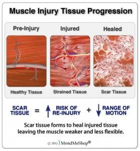 In the simplest of terms, fascia is an opaque connective tissue covering to muscle tissue. ... The fascia from one muscle then connects with the fascia from other muscles and forms a network of connective tissue that integrates from the top of your head to the tips of your toes.