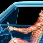 Massage for Whiplash Pain, Auto Accident Injuries / in Santa Barbara, Goleta