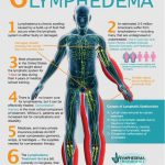 ManualLymphatic Drainage Pump, Lymphedema Massage, Santa Barbara, Goleta, Ca