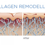 Collagen Remodelling