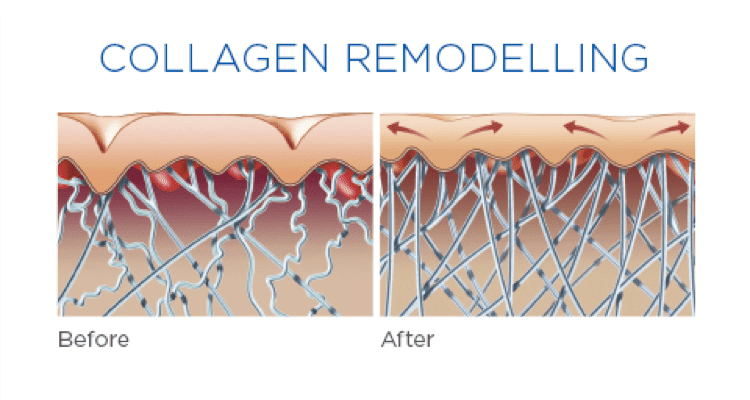 Collagen Remodelling