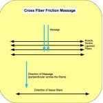Cross Fiber / Deep Transverse Friction Massage, Santa Barbara, Goleta, Ca.