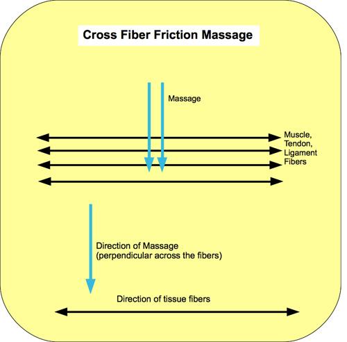 Cross Fiber / Deep Transverse Friction Massage Santa Barbara, Goleta