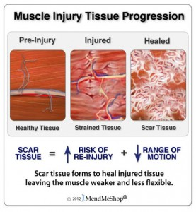 Neuromuscular Therapy (NMT)