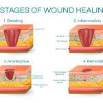 Scar Tissue Massage, Injuries with Scar Tissue, Santa Barbara, Goleta, Ca