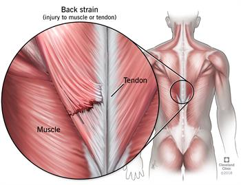 Back Pain Injuries/ Low Back Pain Management for Pulls, Strains, Spasms, Santa Barbara, Goleta