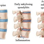 Ankylosing Spondylitis (AS) Massage, Santa Barbara, Goleta, Ca