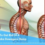 Dowager Hump (Kyphosis), Buffalo, Thoracic Humps – Massage for!