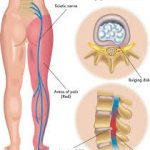 Massage for Sciatic Nerve Pain in Santa Barbara
