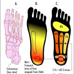 Plantar Fasciitis Treatment in Santa Barbara, Goleta for Runners, Athletic Injuries