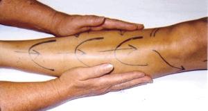 Massage for Edema