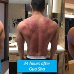 New – Get Sports Gua Sha at PRO Massage