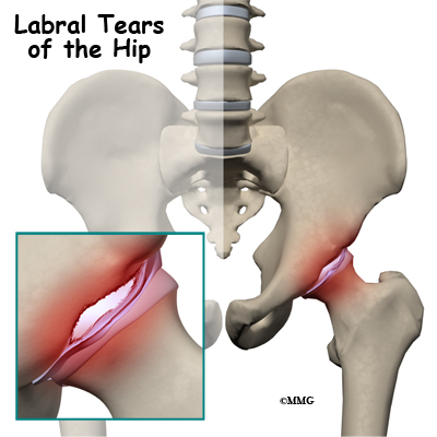 The acetabular labrum is a ring of specialized cartilage resting on the edge of the bony socket (acetabulum) of the hip joint