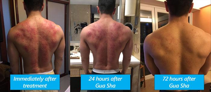 PRO Massage Enhancements