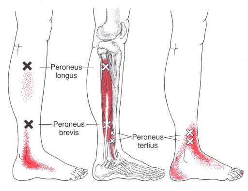 Trigger points for Peroneal Tendonitis