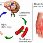 Chronic Pain Syndrome (CPS)