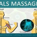 ALS – Amyotrophic Lateral Sclerosis –Lou Gehrig's Disease
