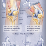 Massage for Patellofemoral Pain Syndrome (PFPS) in Santa Barbara, Ca.