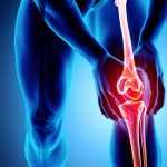 Facts and Massage for Knee Injuries