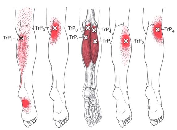 trigger points leg pain 1