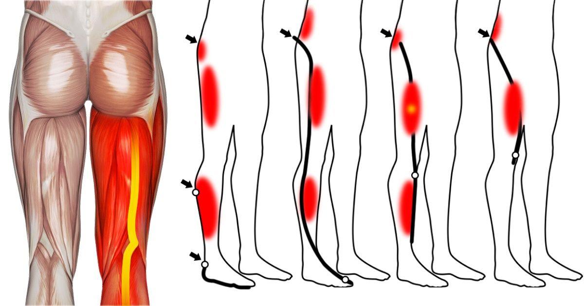 trigger points leg pain
