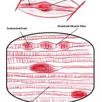 Massage & Facts on Muscle Knots