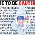 Facts on Lupus