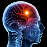 Facts on & Massage for Strokes